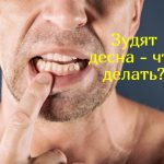Что делать, если сильно зудят десна?