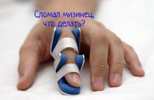 Сломал палец, что делать