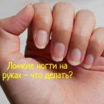 Что делать, если на руках ломкие ногти?