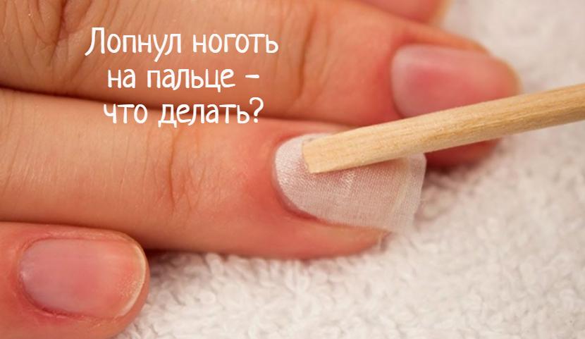 Что делать, если лопнул ноготь на пальце?