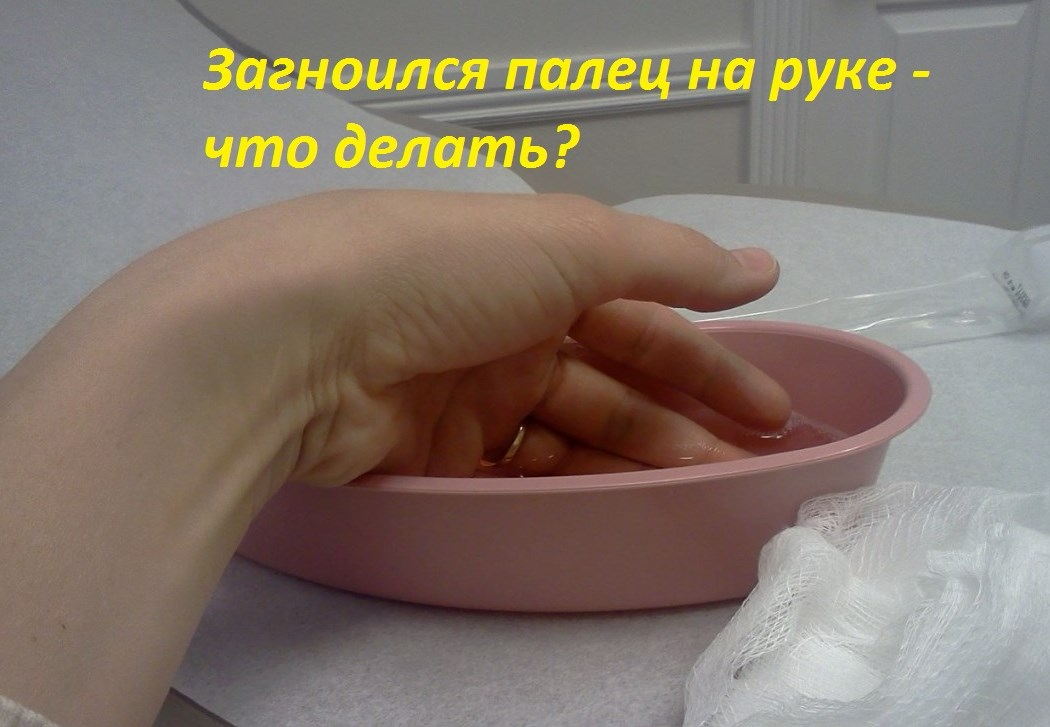 Что делать, если загноился палец у ногтя?