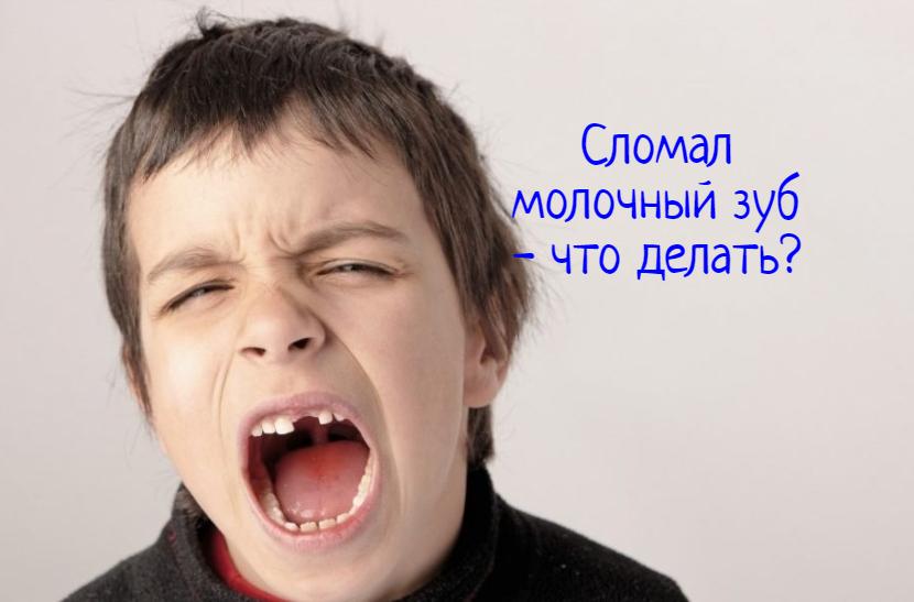 Что делать, если ребенок сломал молочный зуб?