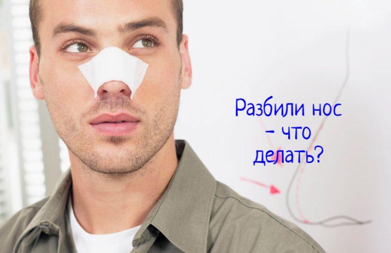 Разбили нос – что делать?
