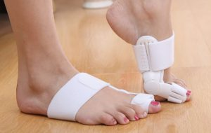 Валюфикс на ноге
