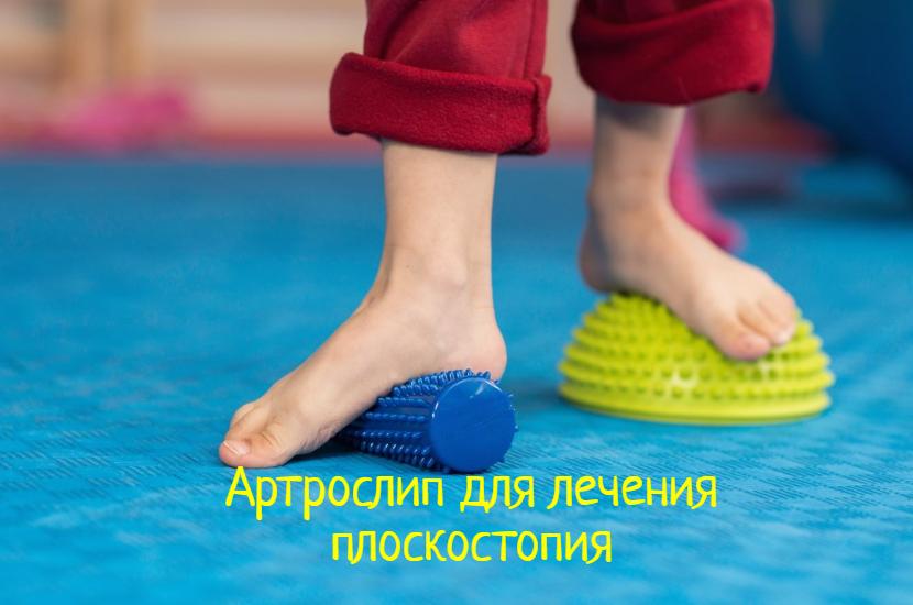 Артрослип – что делать с плоскостопием