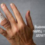 Что делать, если вывихнул палец на руке?