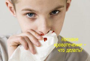 Носовое кровотечение первая помощь