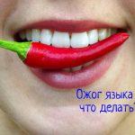 Что делать, если обожгла язык и болит?