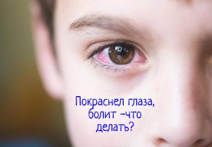 Покраснел глаз, болит