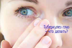 Туберкулез глаз что делать