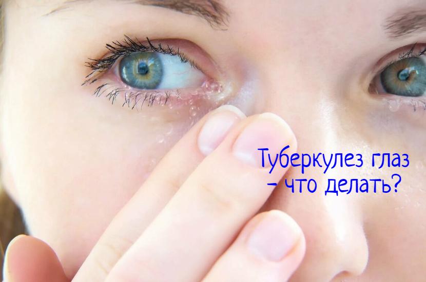 Туберкулез глаз – лечение, что делать?