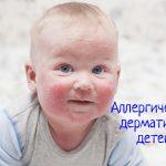 Аллергический дерматит у детей – что делать, как лечить?