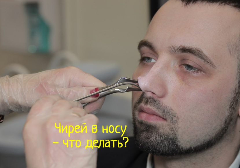 Что делать, если вскочил чирей в носу?
