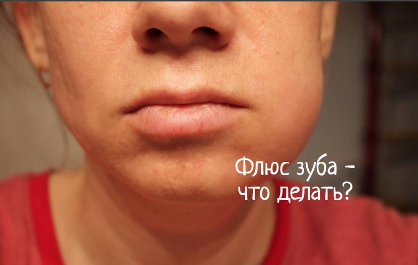 Флюс зуба – причины, что делать?