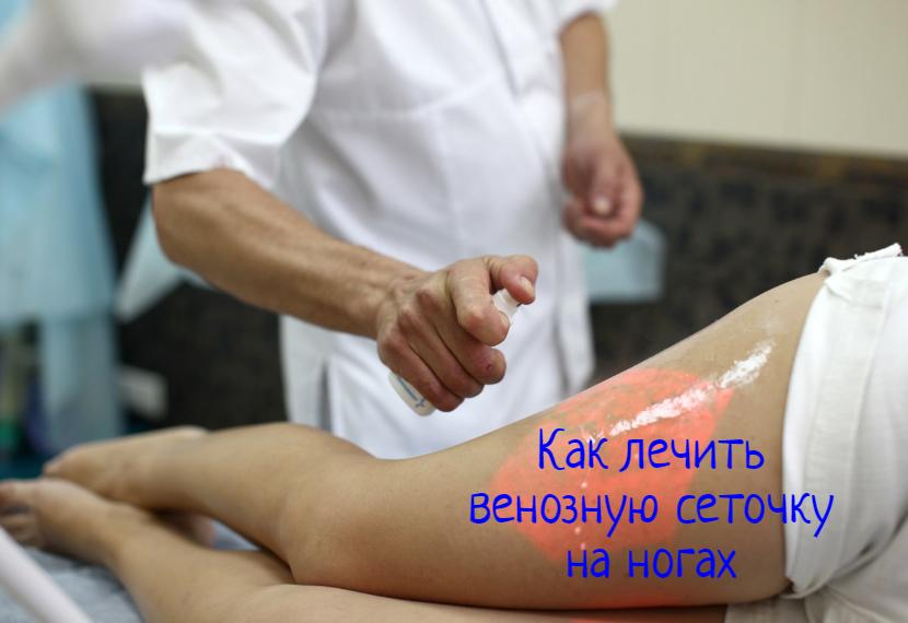 Венозная сеточка на ногах – что делать?