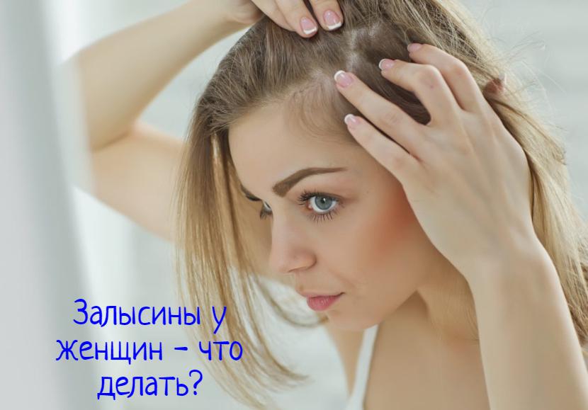 Что делать, если появились залысины на голове у женщины?
