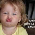 Что делать, если у ребенка на губе появился герпес?