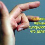Что делать, если склеились пальцы суперклеем?