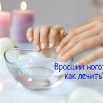 Болит палец из-за вросшего ногтя – что делать?