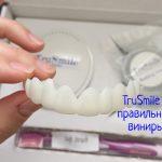 Виниры TruSmile – что делать, если хочется красивую улыбку