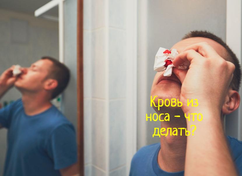 Кровь из носа — что делать, первая помощь?