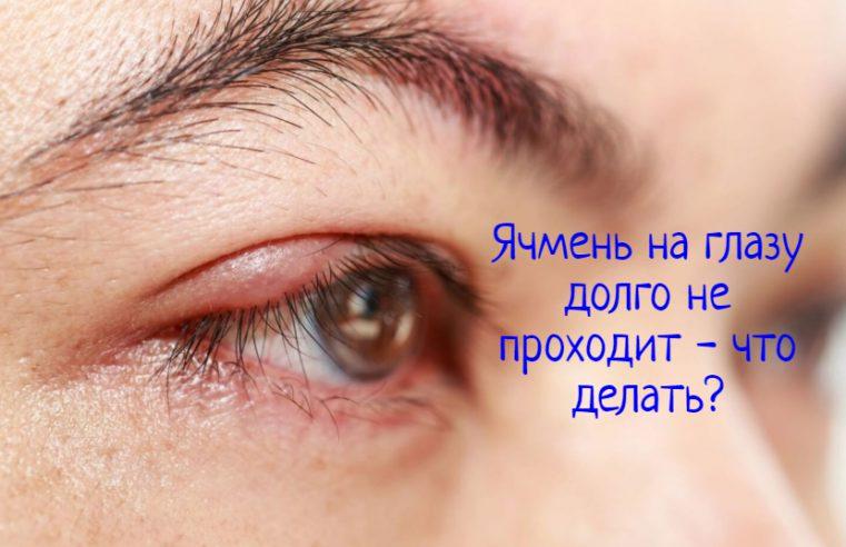 Ячмень на глазу долго не проходит – что делать?