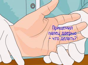Прищемил палец дверью