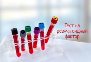 Тест на ревматоидный фактор