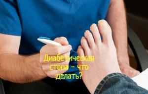 Лечение диабетической стопы