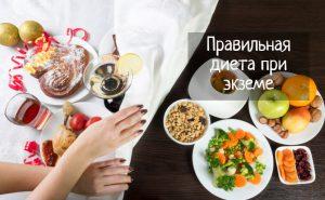 Правильная диета при экземе