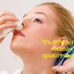 Что делать при кровотечении из носа?