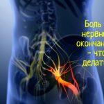 Острая боль в нервных окончаниях шеи - что делать?